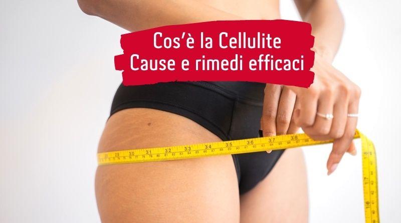 Cos'è la Cellulite: cause e rimedi efficaci